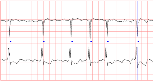 The MIT-BIH Atrial Fibrillation Database