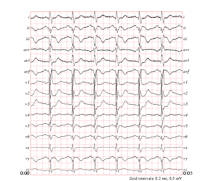 The PTB Diagnostic ECG Database